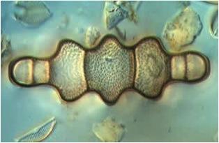 Diatoms2